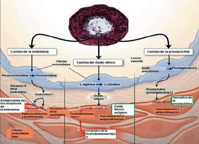 Sildenafil En Hipertension Pulmonar